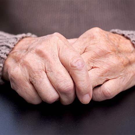 Arthritis Spectrum